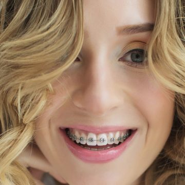 Aligning Your Teeth Using Orthodontic Dental Braces